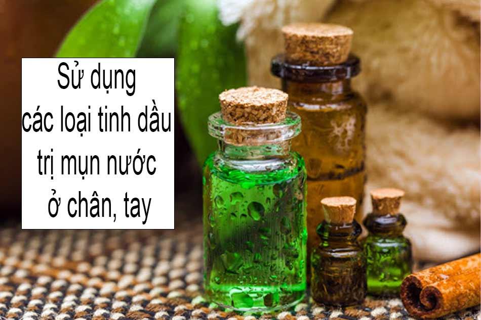 Sử dụng các loại tinh dầu trị mụn nước ở chân, tay hiệu quả