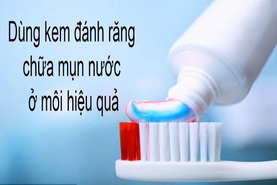 Dùng kem đánh răng chữa mụn nước ở môi hiệu quả