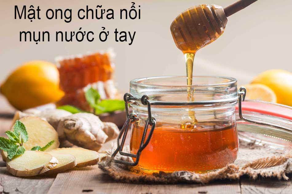 Sử dụng mật ong chữa nổi mụn nước ở tay
