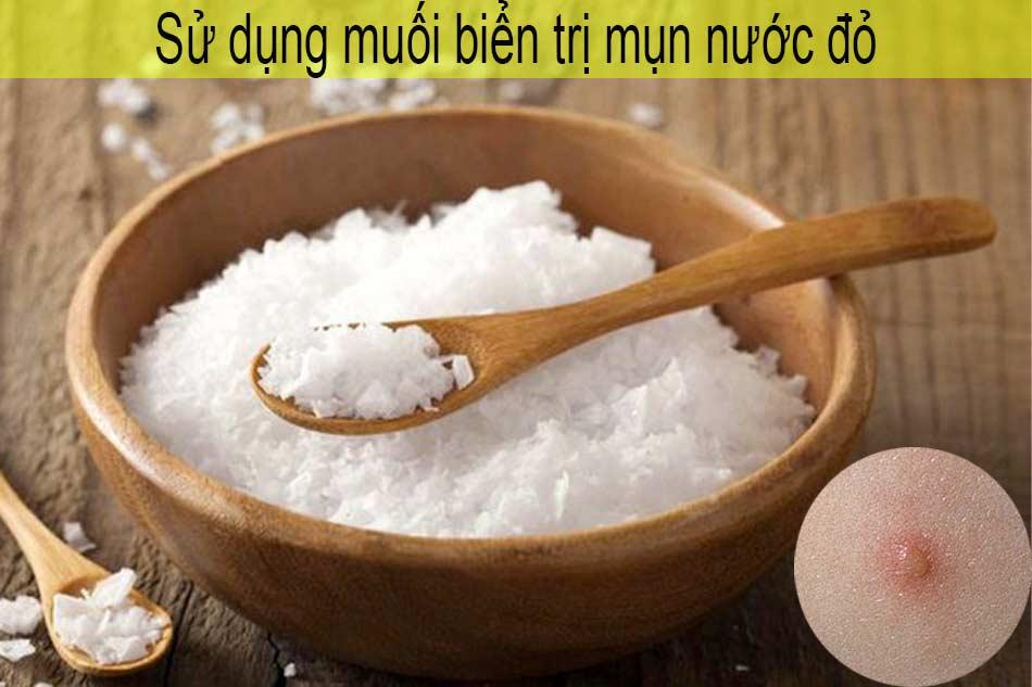 Sử dụng muối biển trị mụn nước đỏ