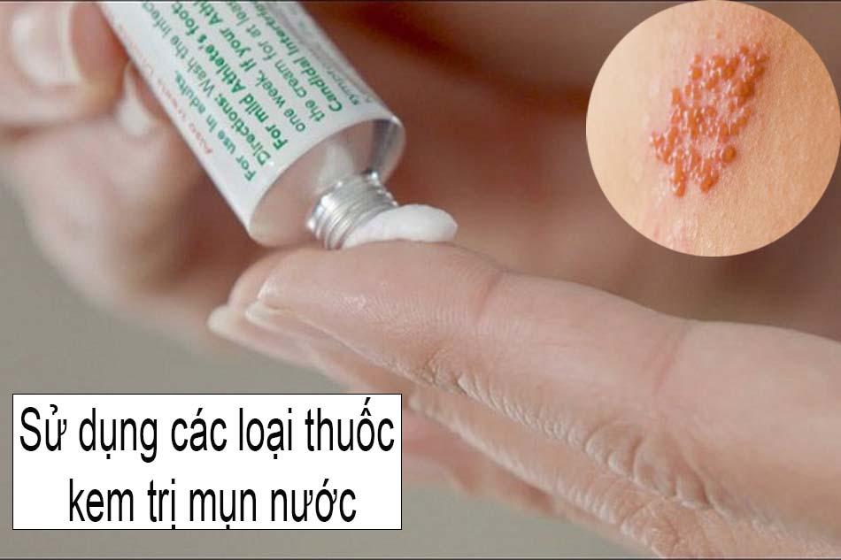 Sử dụng các loại thuốc kem trị mụn nước